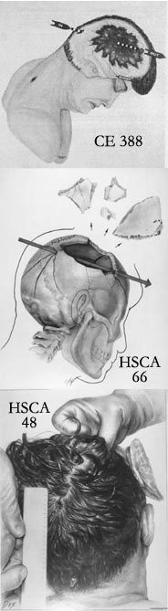 Composite view of: CE 388, the Warren Commission's drawing, HSCA Exhibit 66, the House Committee's depiction, HSCA Exhibit 48, artist's rendering of autopsy photo.