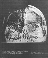 Enhanced anterior-posterior X-ray from Kennedy autopsy