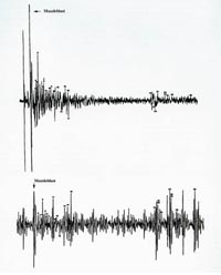 Oscillogram of test shot fired from grassy knoll (top) and sound pattern on DPD recording (bottom)