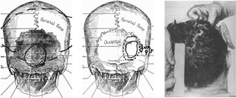 Left: HSCA drawing by mortician Tom Robinson. Middle: HSCA drawing by FBI agent James Sibert. Right: HSCA recreation of JFK autopsy photo. (no autopsy photo shows rear head wound described by Dallas doctors and autopsy participants)